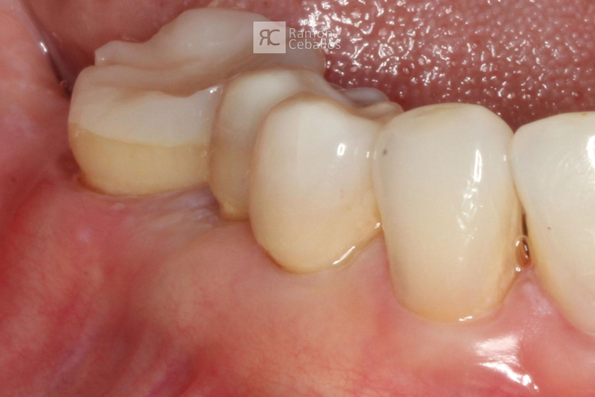 RamonCeballos-covertura-radicular-cervicales-b