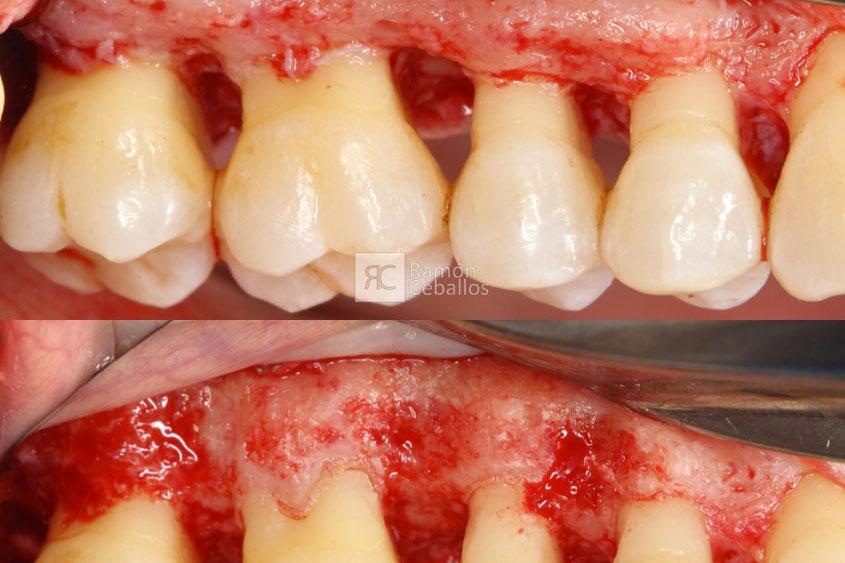 Cirugía osea resectiva por enfermedad periodontal