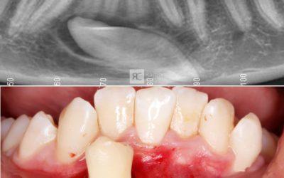 Extracción quirúrgica de un canino incluido en el sector anterior mandibular
