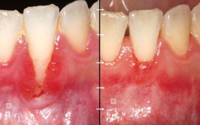 Recesión anterior Mandibular de 6mm